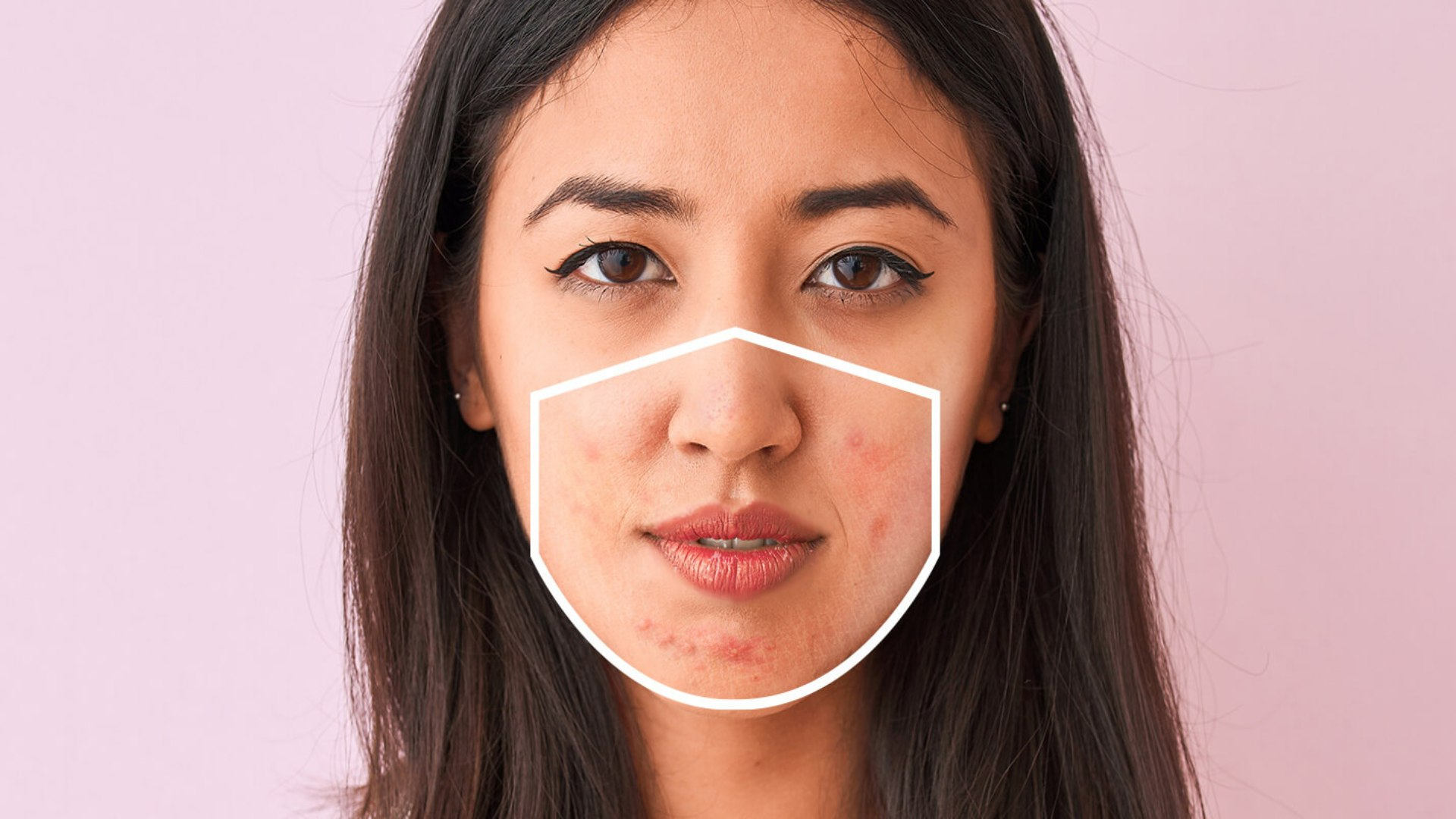 Como as máscaras interferem no aparecimento da acne